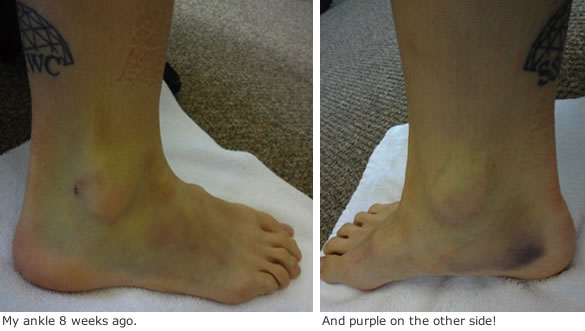 Kari Studley displays her yellow and purple ankles